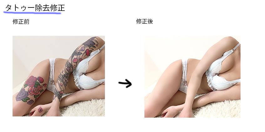 タトゥー除去修正