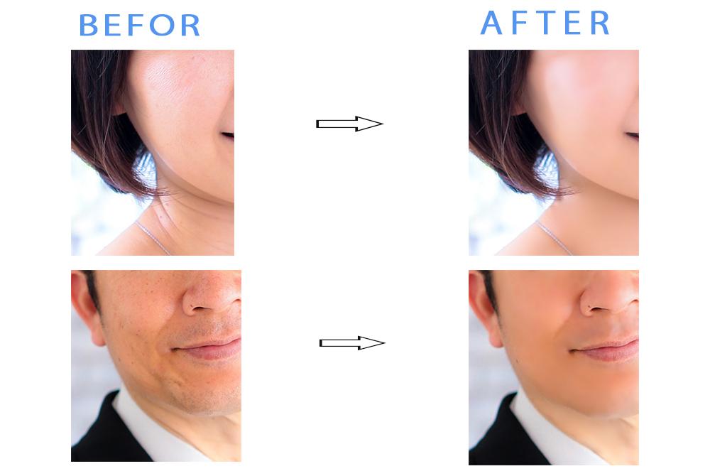 修正前と修正後の肌の補正