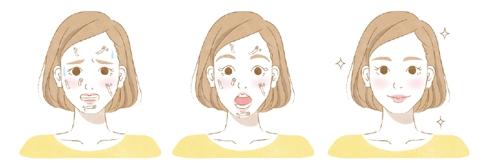 ニキビダニ、顔ダニを綺麗にしている女性