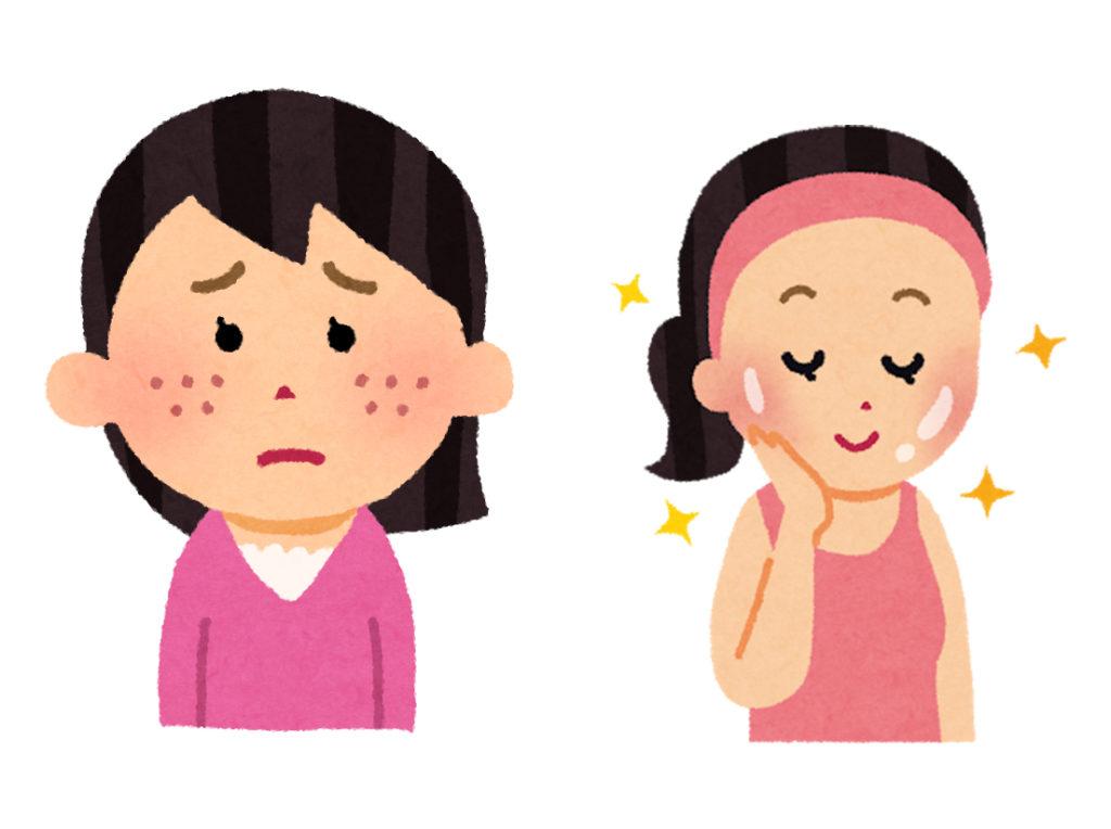 ニキビを治して肌ストレスなしになる女性