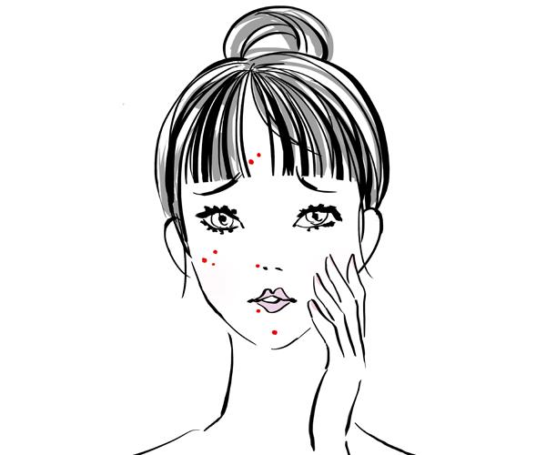 顔のまわりニキビのイラスト