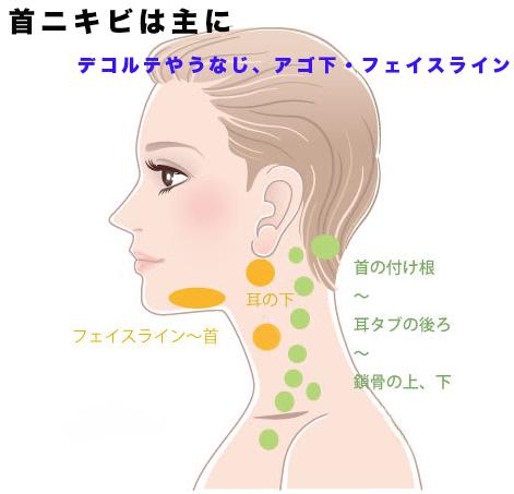 ニキビ 痛い 眉毛 眉毛ニキビの原因は何?予防・改善法を徹底解説致します!