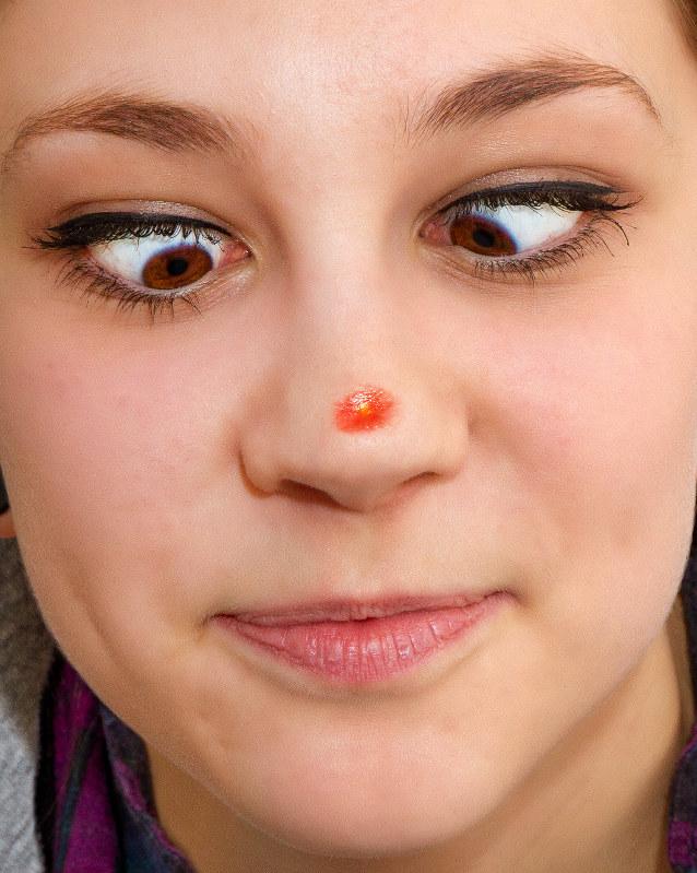 鼻ニキビの症状や種類