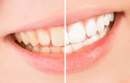 歯のホワイトニングをしている口元