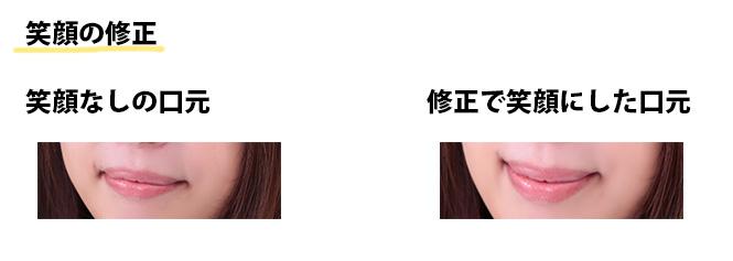 笑顔修正前と後の口元の画像