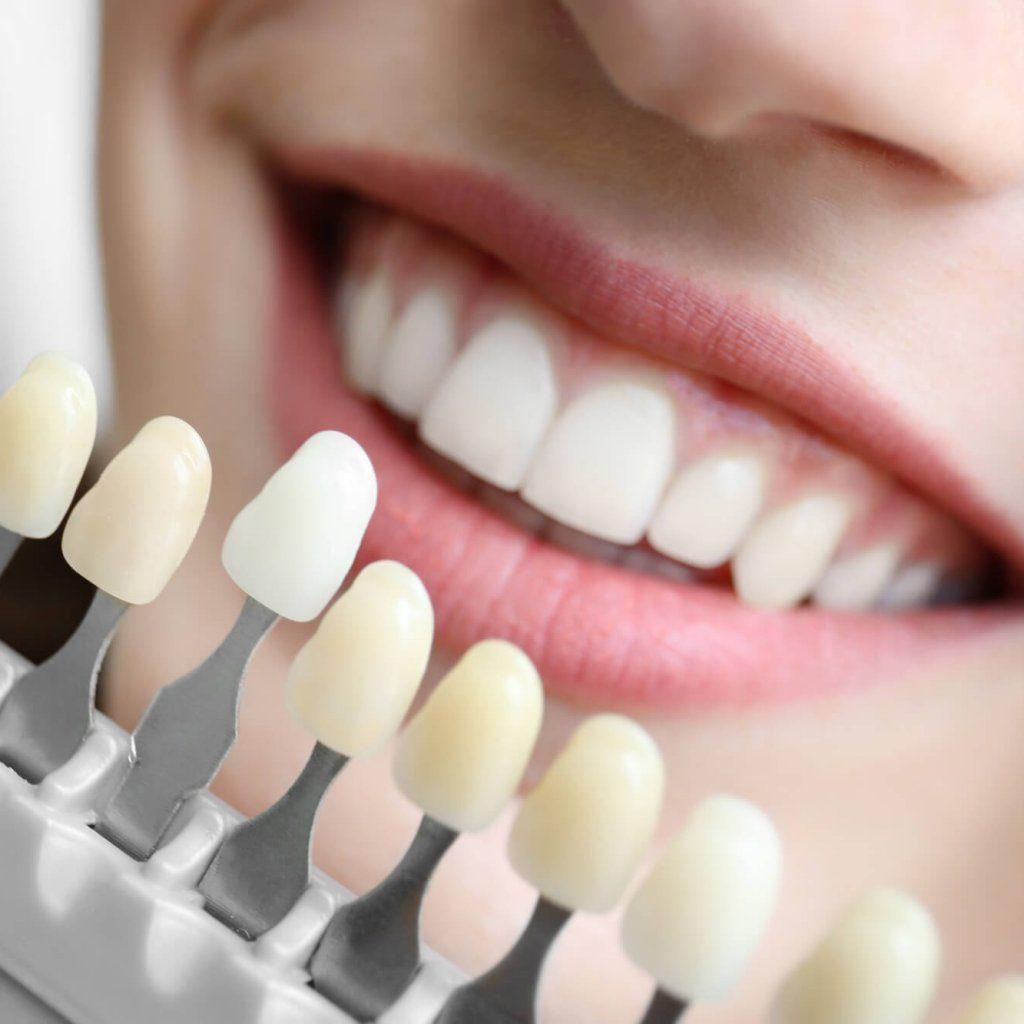 歯の色を確かめる様子