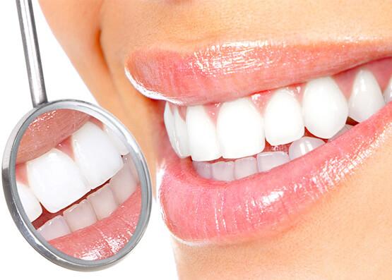 歯が白くなっている様子