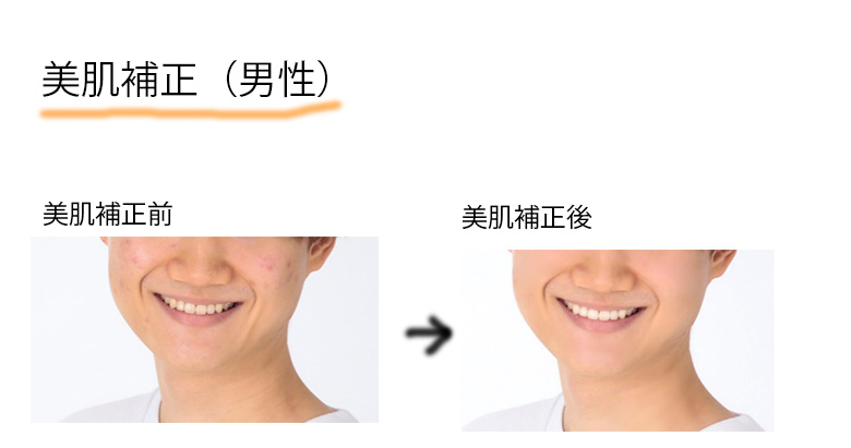 男性の美肌補正の写真