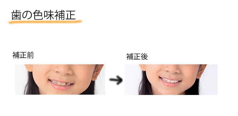 歯の色味と歯並びの補正