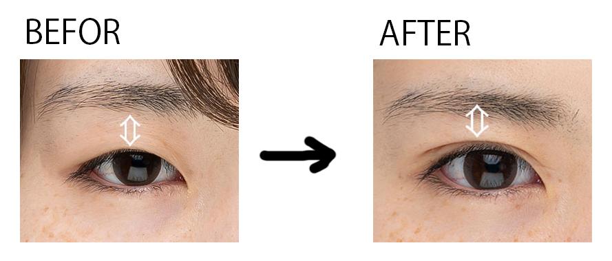 二重メイクをしている目としていない目の違いを表した写真