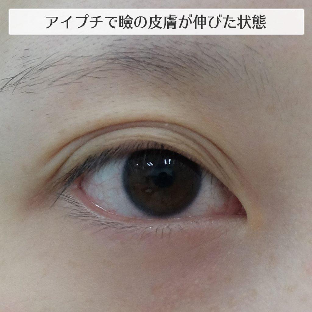 アイプチのしすぎでのびた瞼