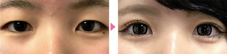 目の二重整形前と後の比較写真