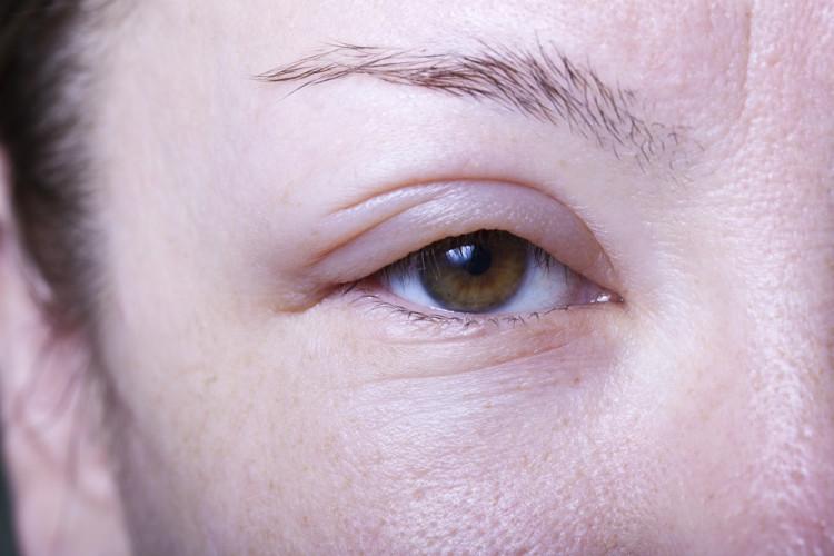 目が腫れてしまっている女性の目元の写真