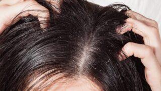 超簡単!フケ、頭皮の匂いやトラブルを自宅で簡単に解決する方法!